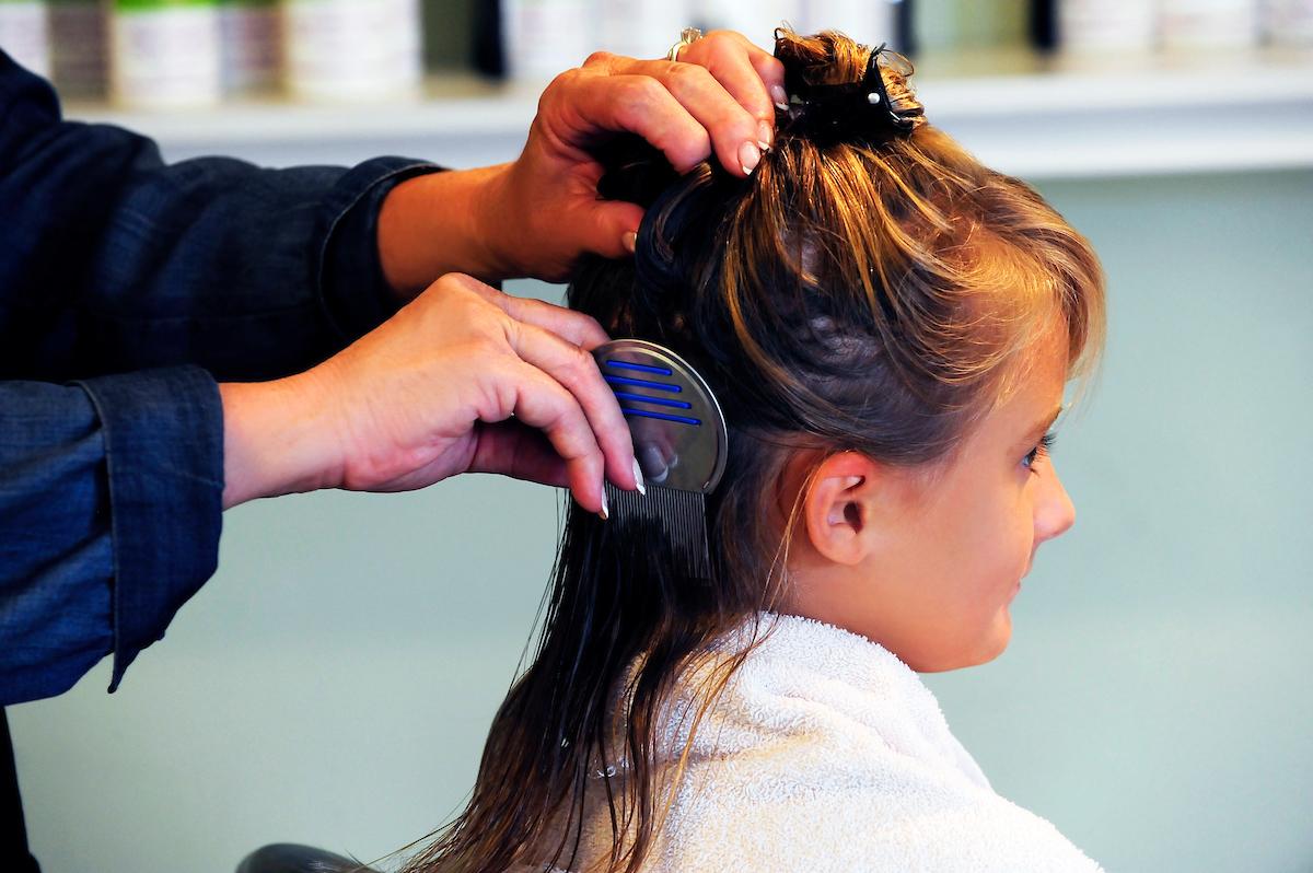 severe lice infestation